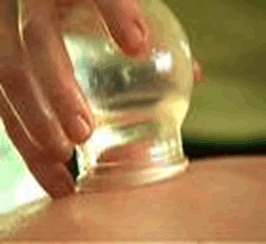 2 Cupping massage